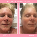 Organic facial before and after